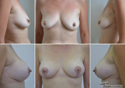 Modelace prsou s augmentací implantáty Mentor
