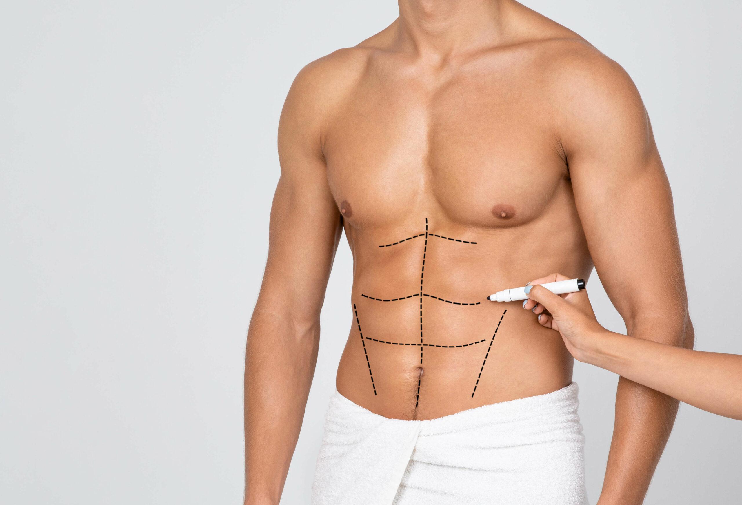 Nechtěl jsem být tlustý – vytvarovaná postava bez převisů kůže aneb můj Body Lift