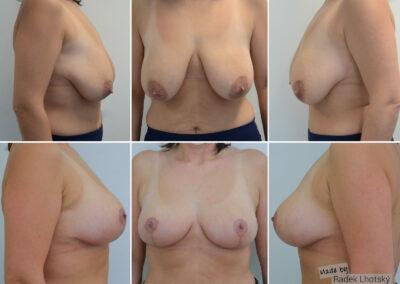 Modelace prsou - MUDr. Radek Lhotský